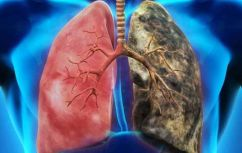 healthy and unhealthy lungs, smoke, e-cigarette
