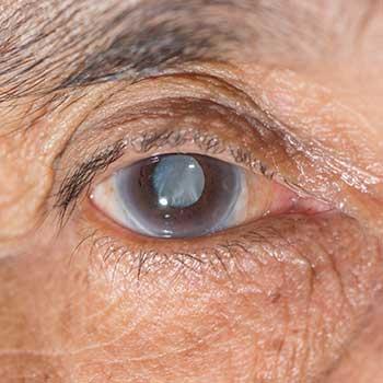 Maggot Infestation In Patient's Eye Socket