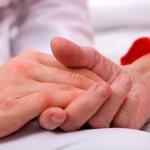 Bed Sores in Maryland Nursing Homes