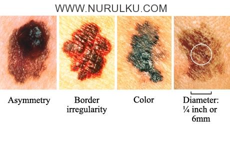 www nurulku com kumpulan jenis penyakit pada kulit 11 Jenis Penyakit Pada Kulit yang Perlu Anda Tau