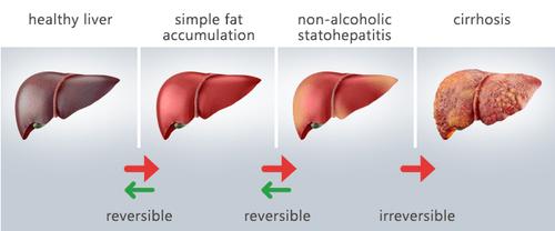 fígado+gordo