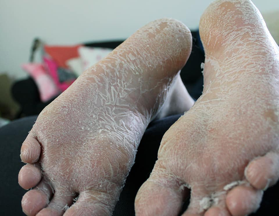 Mineas-Exfoliating-Socks-08