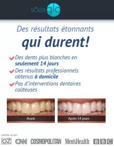 SoleilGlo pour blanchiment des dents