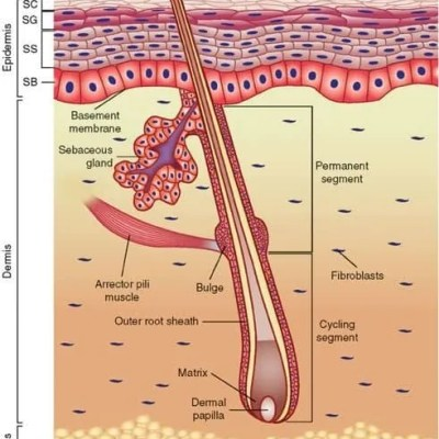 Laser vs. Electrolysis