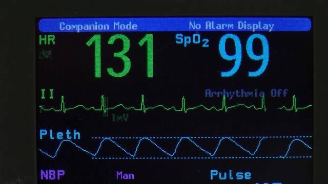 Mortality Rate_1541103981967.jpg.jpg