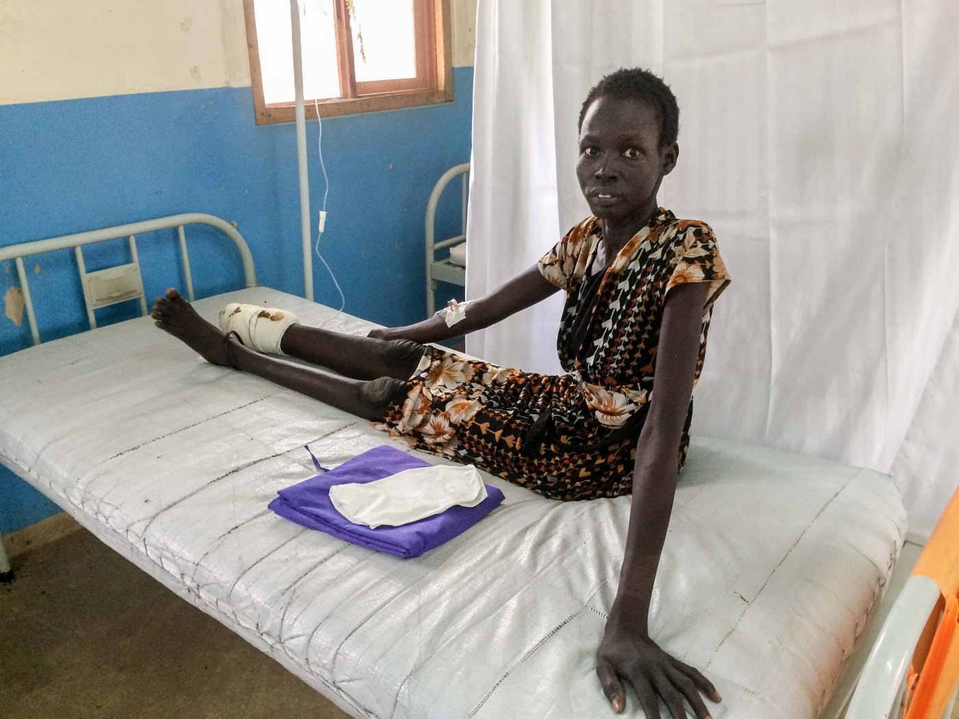 A patient who lost her foot and lower leg due to a snakebite that was not treated on time awaits surgery at the MSF hospital in Agok.
