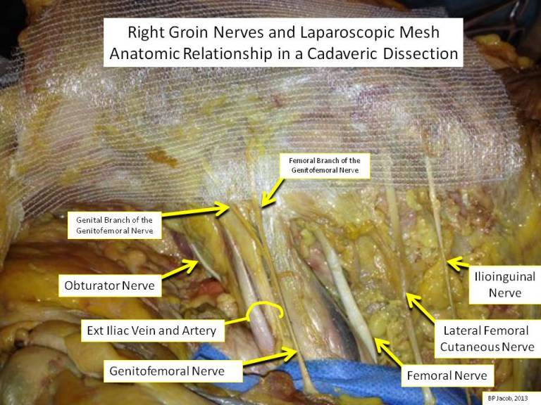 Anatomic Relationship of laparoscopic hernia mesh and nerves.