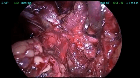 Laparoscopic TEP mesh plug removal and recurrent hernia repair with self-gripping mesh and no tacks