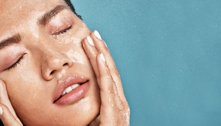 How To Get Rid Of Oily Skin- Home Remedies For Oily Skin & Pimples ...