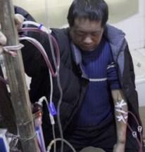 Sem dinheiro para ir ao hospital, Hu Songwen desenvolveu sua própria máquina de hemodiáliseFoto: AP