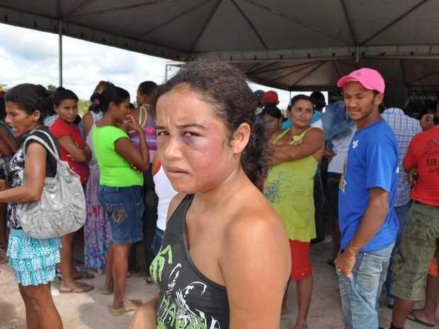Mulher afirma ter sido agredida a socos pelo companheiro (Foto: Francisco Rocha/G1)