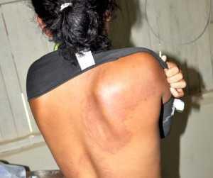 Mulher mostra marcas da agressão (Foto: Francisco Rocha/G1)