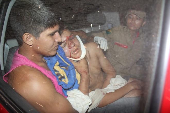 Daniel também sofreu hematomas pelo rosto devido o impacto - Foto: Alexandre Lima