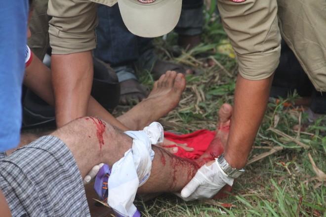 Perna do jovem recebeu todo o impacto da batida - Foto: Alexandre Lima