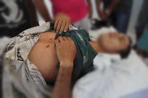Renato da Silva Lira (27), foi atingido abaixo do peito esquerdo e não resistiu ao ferimento – Foto: Alexandre Lima