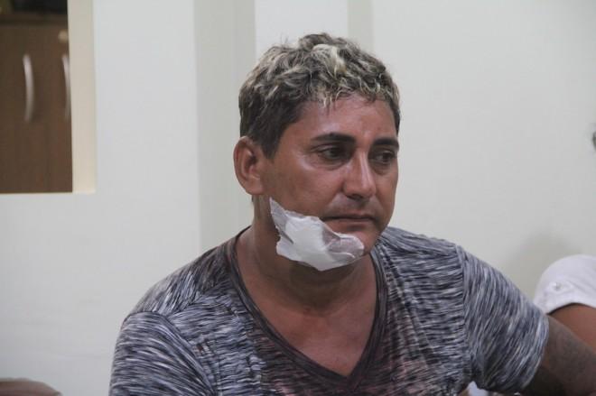 Rosimar tentou ajudar amigo e foi ferido no rosto por Gilson - Foto: Alexandre Lima