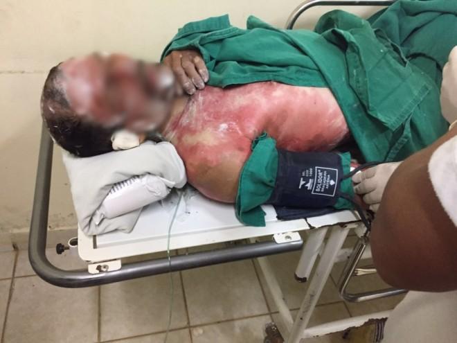 A vítima foi encaminhada ao Hospital de Urgência e Emergência de Rio Branco/Foto: ContilNet