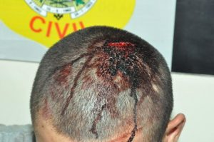 Um dos agressores foi ferido na cabeça durante a confusão/Foto: ContilNet