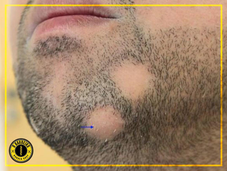 alopécia barba 1