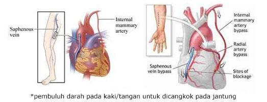 pencangkokan pembuluh darah untuk operasi