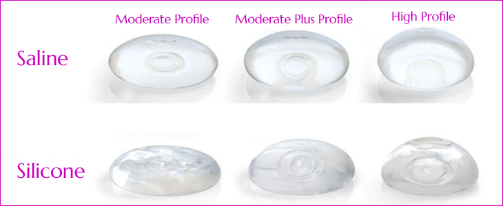Saline v silicone implants
