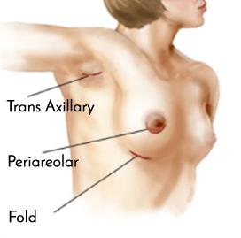 Breast Augmentation Incision Locations