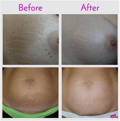 Laser Stretch Mark Removal in Jacksonville at Obi Plastic Surgery