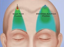 Endotine Forehead Lift at Obi Plastic Surgery in Jacksonville Florida