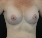 breast-aug-13-after