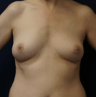 breast-aug-15-before