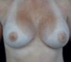 breast-aug-2-after
