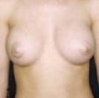 breast-aug-4-after