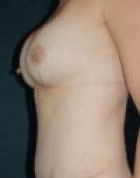 breast-lift-2-after-scarless