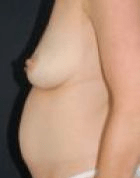 breast-lift-2-before-scarless