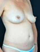 breast-lift-3-before-a-scarless