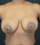 breast-lift-5-after