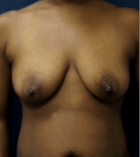 breast-lift-5-before