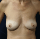 breast-lift-7-before