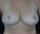 breast-reduction-1-after