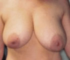 breast-reduction-1-before
