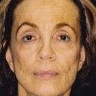 facelift-3-before