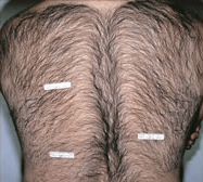 laser-hair-removal-4b