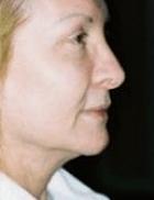 necklift-10-before