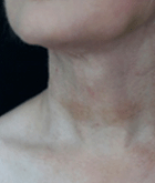necklift-3-after