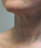 necklift-3-before
