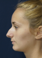 rhinoplasty-2-before