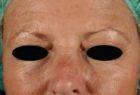 skin-resurfacing-1-before