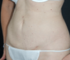 slimlipo-19-after