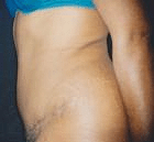 tummy-tuck-2-after