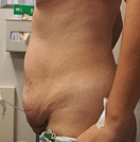 tummy-tuck-7-before